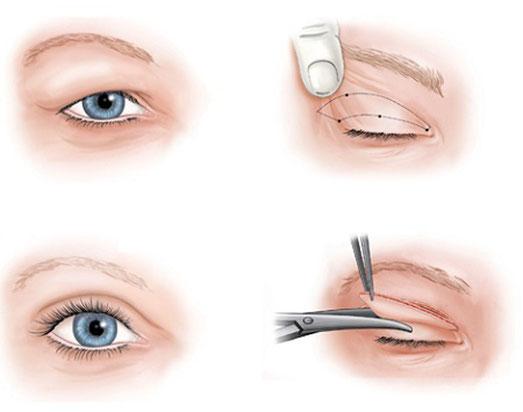Phẫu thuật thẩm mỹ cắt mí mắt hỏng khắc phục nhanh chóng và đơn giản