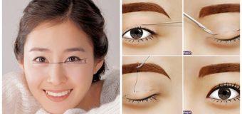 Làm tiểu phẫu cắt mí mắt có gây đau đớn gì không?