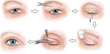 Giá cắt mí mắt 2020 liên hệ bác sĩ Thuận