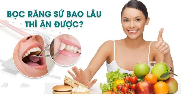 Những lưu ý khi lựa chọn bọc răng sứ.